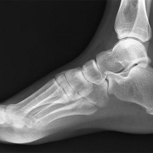 Broken ankle yoga